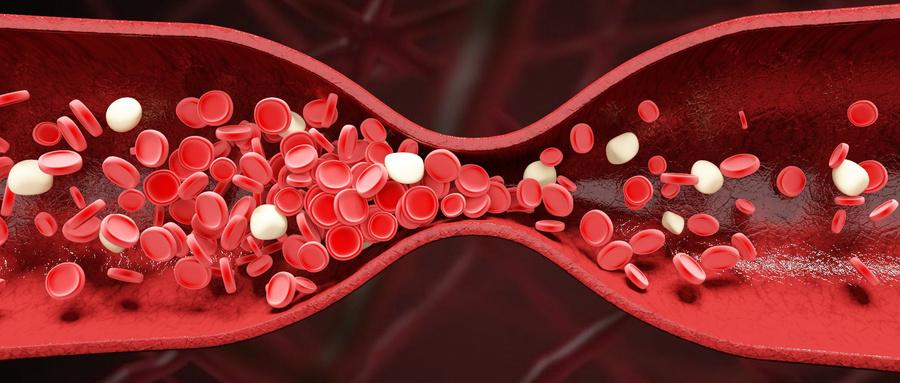 如何加速全身血液循环?促进新陈代谢?