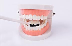 儿童保护牙齿