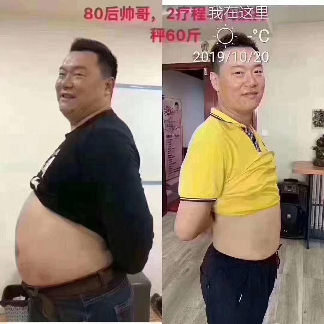 尚赫团队-减肥效果图